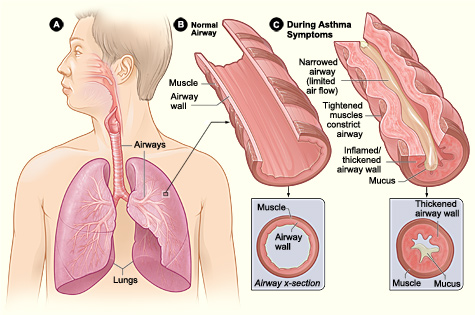 Asthma Infographic Description