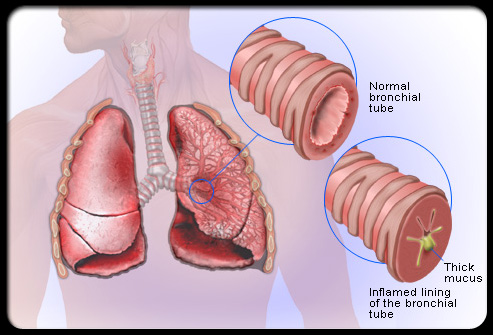 bronchitis diagram