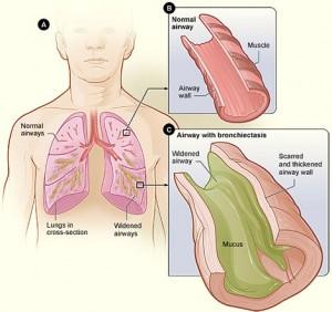 bronchiectasis