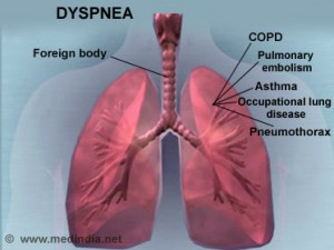 dyspnea causes and treatment