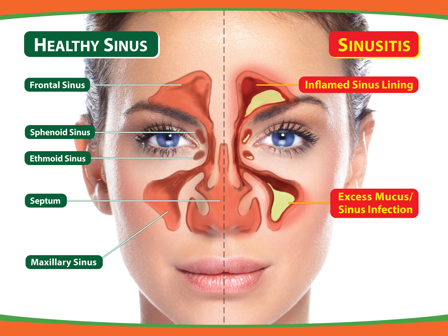 Is It Really a Sinus Headache recommendations