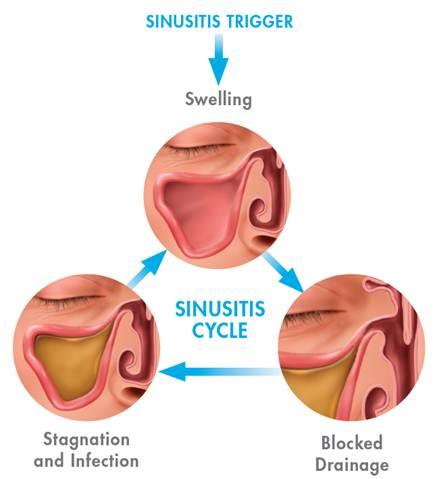 Sinus Infection Sinusitis