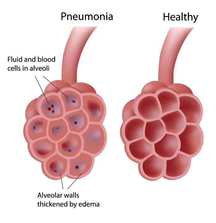 Natural Treatment Pneumonia Symptoms